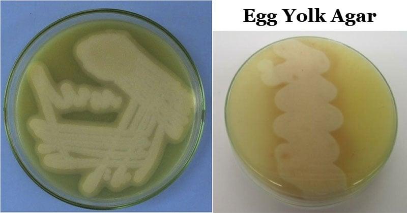 Egg Yolk Agar