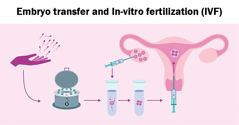 artificial intelligence in ivf