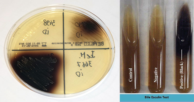 Result Interpretation on Bile Esculin Agar