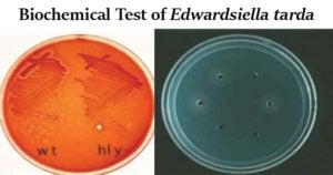 Biochemical Test of Edwardsiella tarda