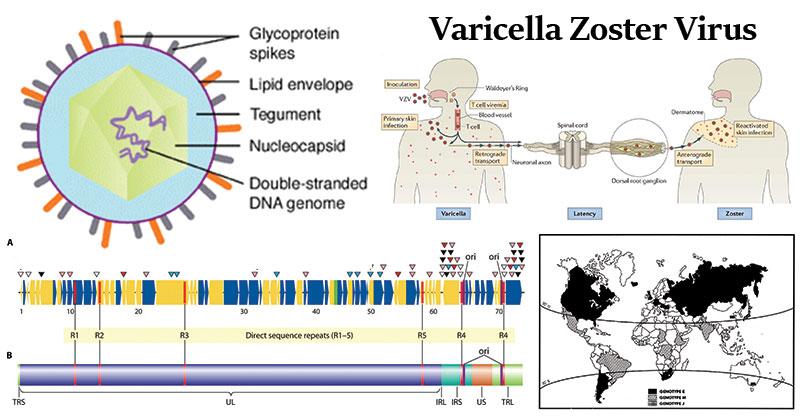 Varicella Zoster Virus