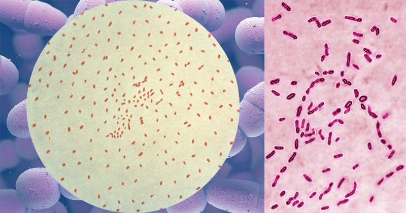 Biochemical Test of Bordetella pertussis
