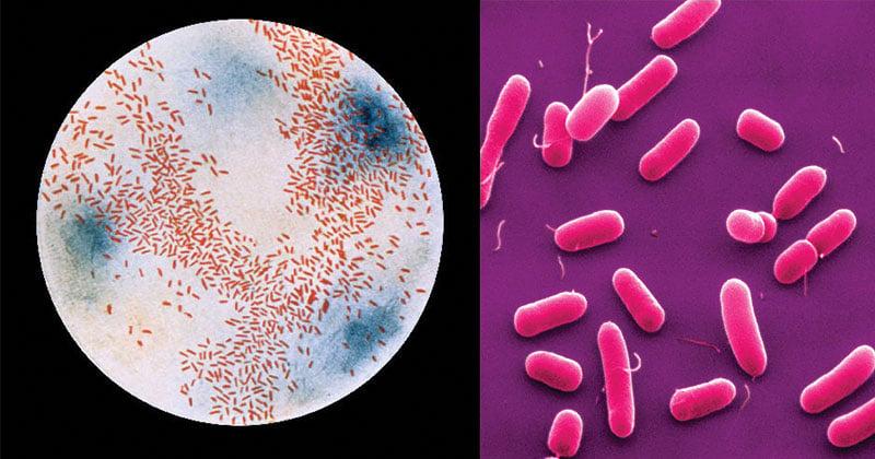 Biochemical Test of Haemophilus influenzae