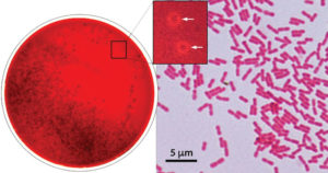 Biochemical Test of Kingella kingae