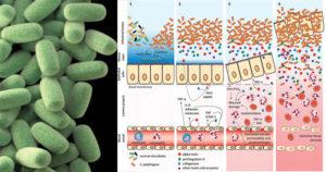 Clostridium perfringens- Pathogenesis, Clinical Features