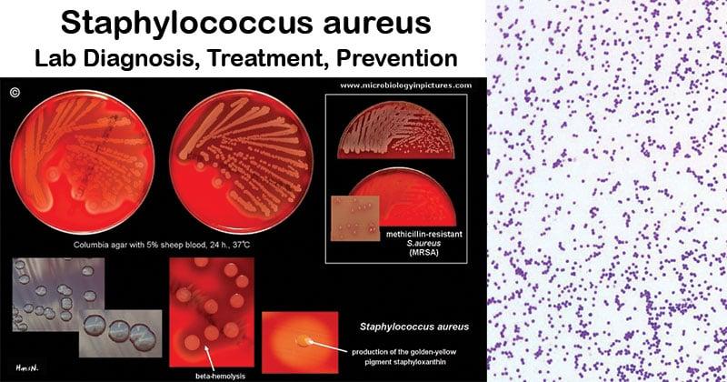 Staphylococcus aureus- Lab Diagnosis, Treatment, Prevention