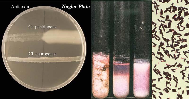 Clostridium perfringens- Laboratory Diagnosis, Treatment, Prevention
