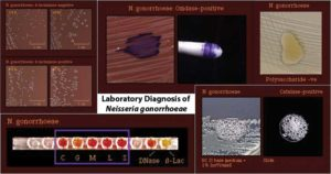 Neisseria gonorrhoeae- Laboratory Diagnosis, Treatment, Prevention