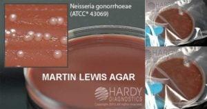 Martin Lewis Agar