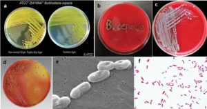 Biochemical Test of Burkholderia cepacia