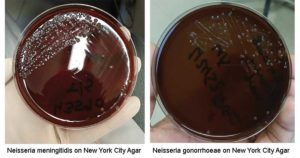 New York City Agar