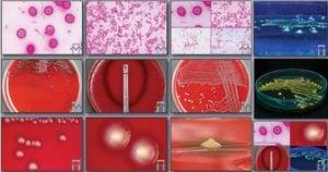 Biochemical Test of Fusobacterium necrophorum