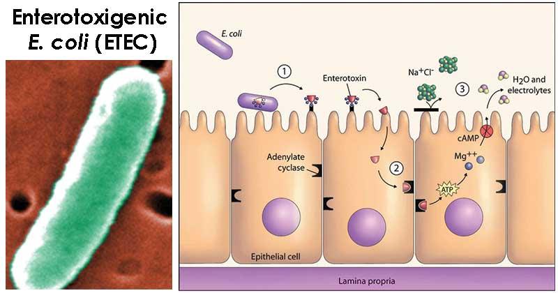 Enterotoxigenic E. coli (ETEC)