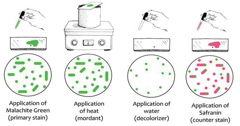 Endospore Staining- Types, principle, procedure and Interpretation