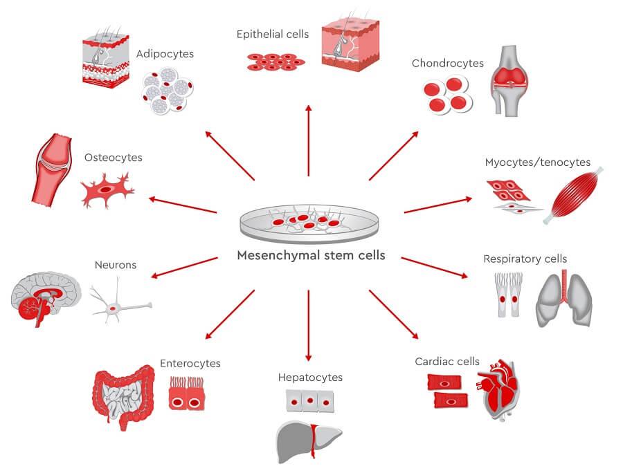 Mesenchymal stem cells (MSCs)