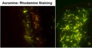 Auramine- Rhodamine Staining