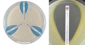 Epsilometer test (E test)