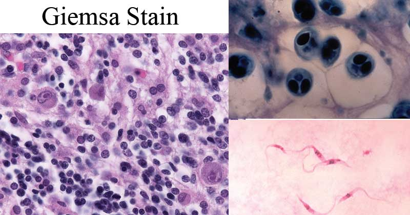 Giemsa Stain- Principle, Procedure, Results, Interpretation