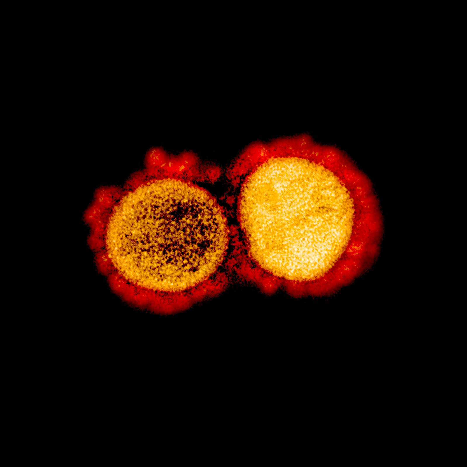 7. Transmission electron micrograph of SARS-CoV-2