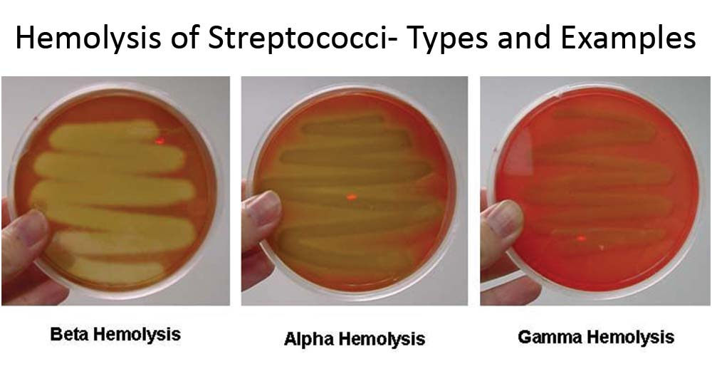 Hemolysis of Streptococci- Types and Examples with Images
