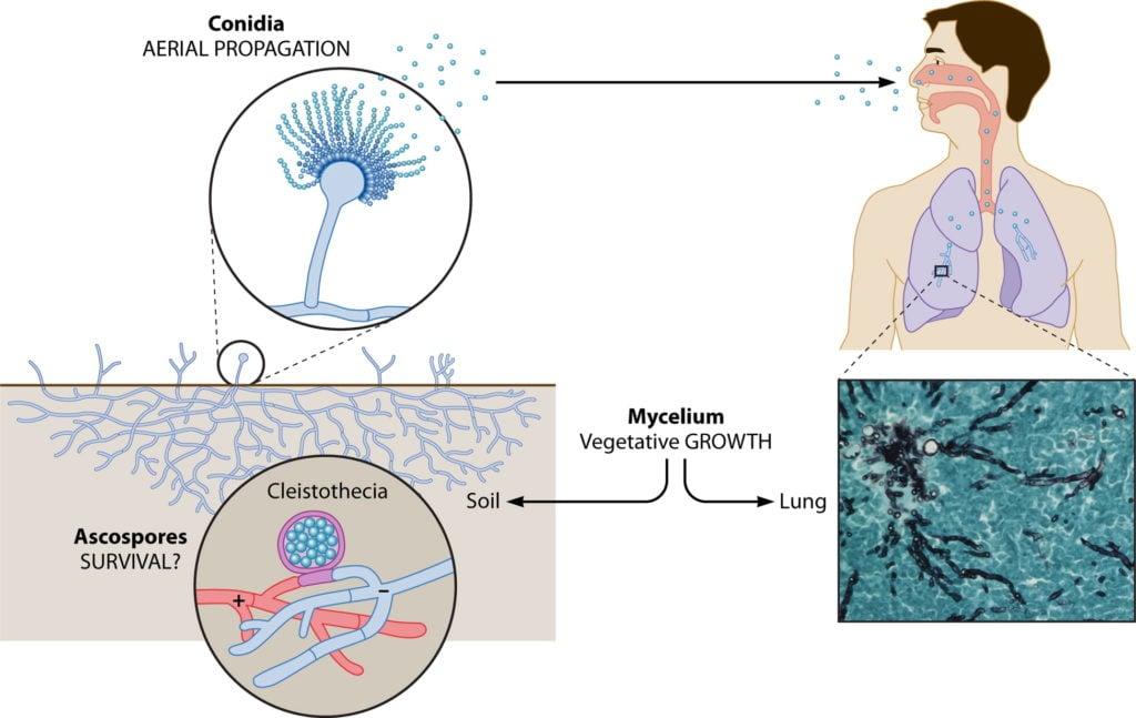 Pathogenesis of Aspergillus fumigatus