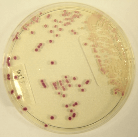 Candida parapsilosis on CHROMAgar