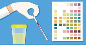 Ketones in urine (ketonuria) and Ketones in urine test