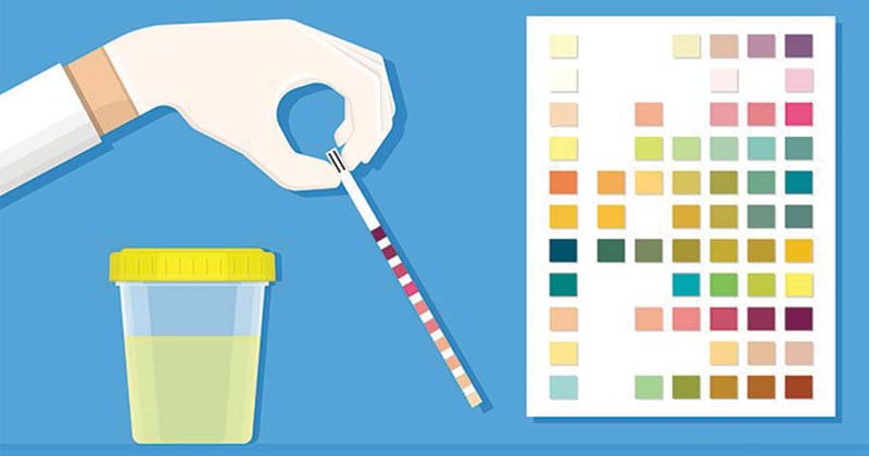 Ketones in urine (ketonuria) and Ketones in urine test
