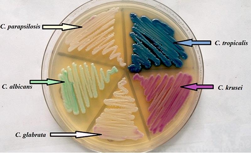 Laboratory Diagnosis of Candida glabrata