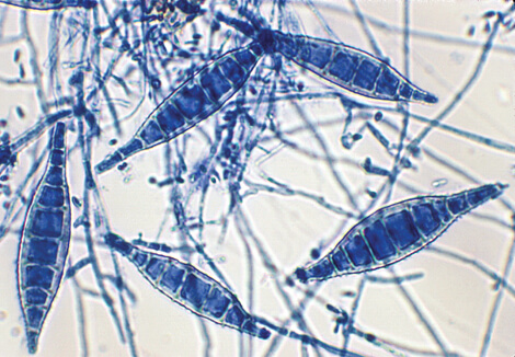 Macroconidia of Microsporum canis