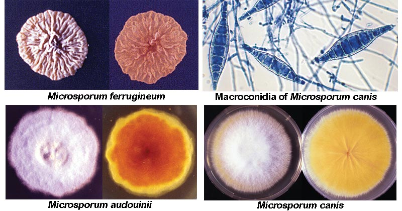 Microsporum spp