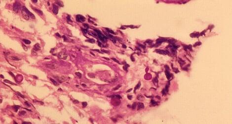 Sporothrix schenckii PAS stain