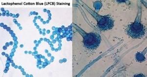 Lactophenol Cotton Blue (LPCB) Staining