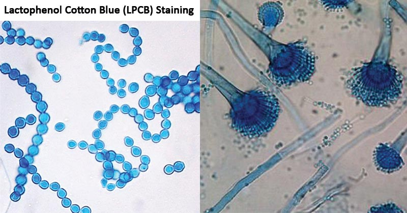 Lactophenol Cotton Blue (LPCB) Staining