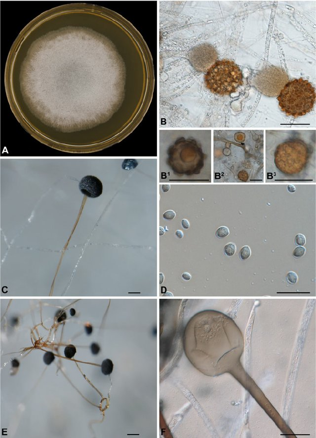 Macroscopic and microscopic morphology of Rhizopus microsporus