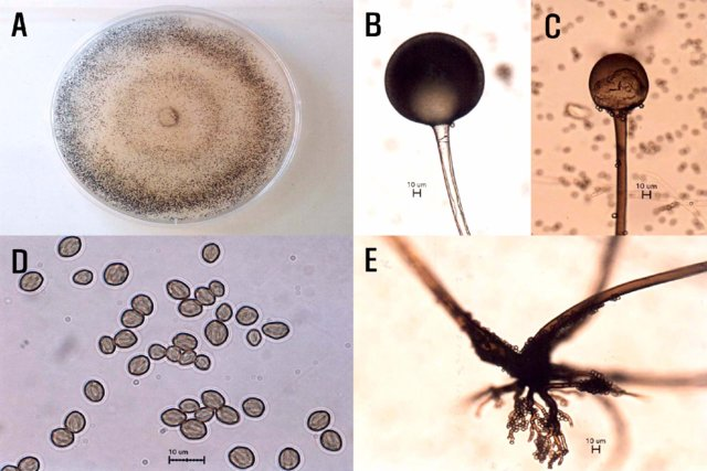 Morphological characteristics of Rhizopus oryzae