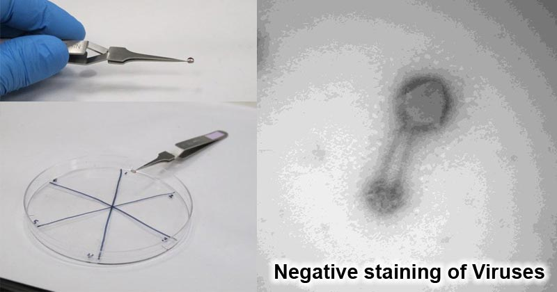 Negative staining of Viruses