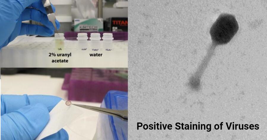 Positive staining of Viruses