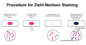 Procedure for Ziehl-Neelsen Staining