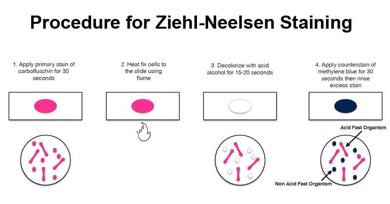 Procedure for Ziehl-Neelsen Staining