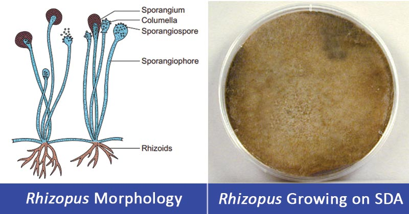 Rhizopus spp