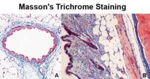 Masson's Trichrome Staining