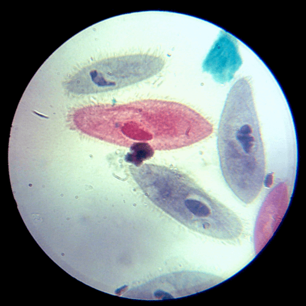 Paramecium under the microscope