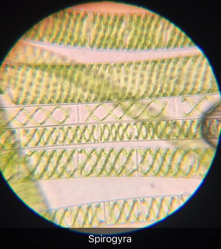 Spirogyra under the microscope