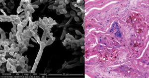 Chromoblastomycosis (Chromomycosis)