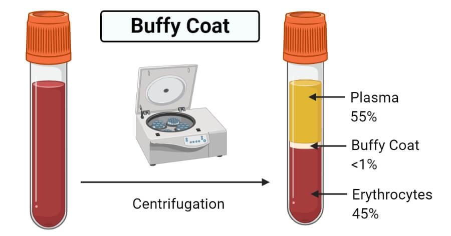 Buffy Coat