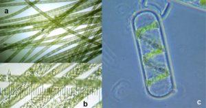Morphology of Spirogyra