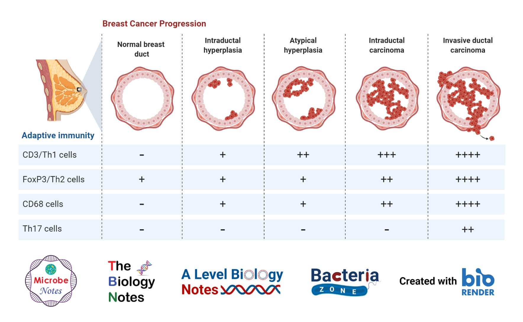 Adaptive Immunity During Breast Cancer Progression