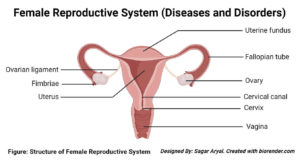 Diseases and Disorders of the female reproductive system