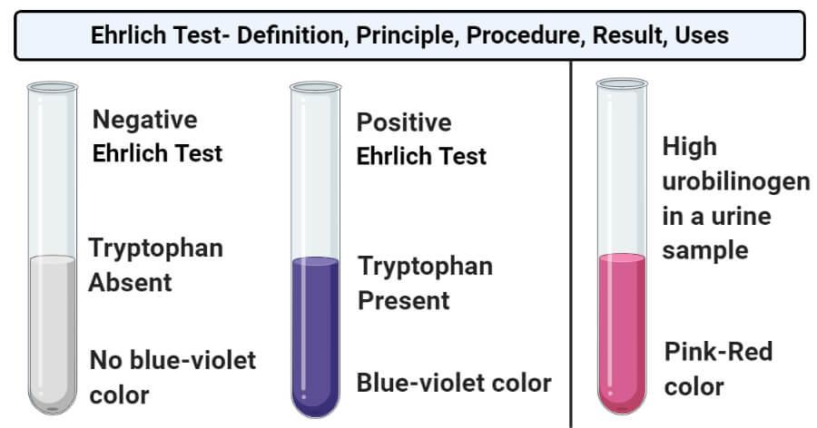 Ehrlich Test